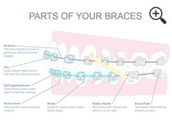 Part of your Braces
